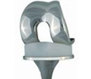 Total knee replacement - type SVL/RP